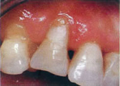 Receding Gums Treatment - Before